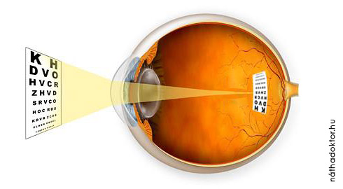 A szem a tárgy képe a retinán