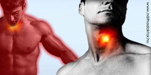 mandulagyulladás tünetei