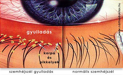 szemhéjszél gyulladás