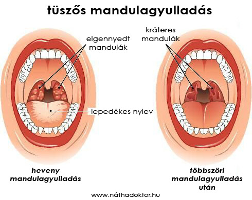 t�sz�s mandulagyullad�s